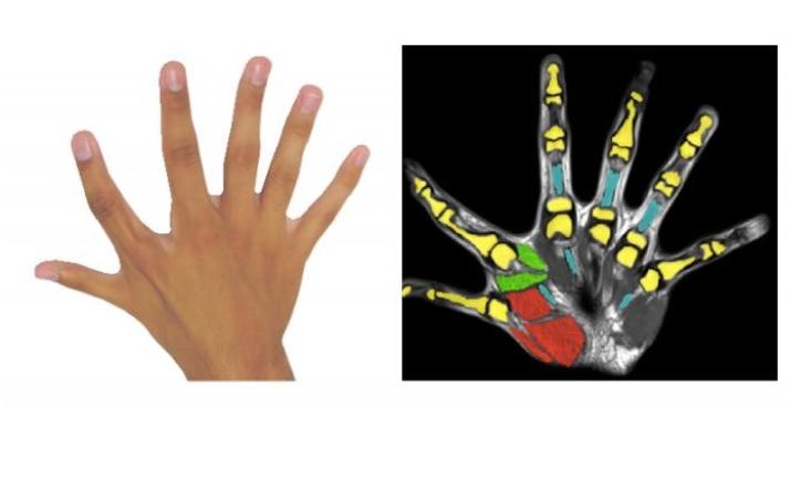 La polydactylie, ou 6 doigts par main, c'est aussi la présence de muscles supplémentaires et des capacités de manipulation augmentées