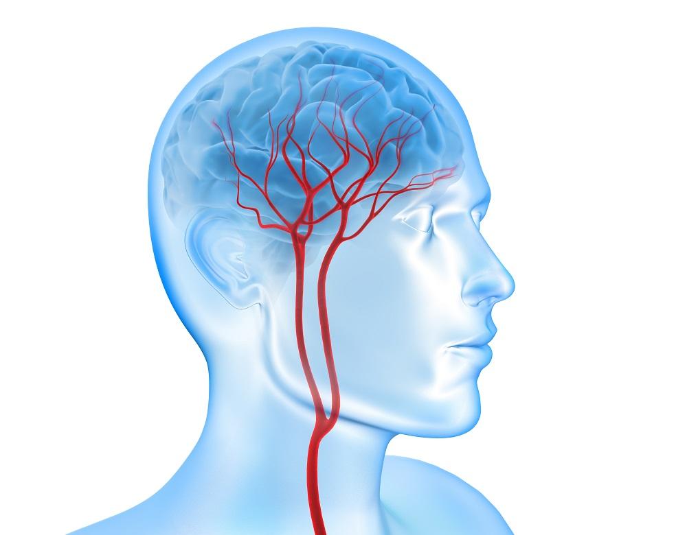 Des globules blancs se collent à l'intérieur des capillaires, les plus petits vaisseaux sanguins du cerveau