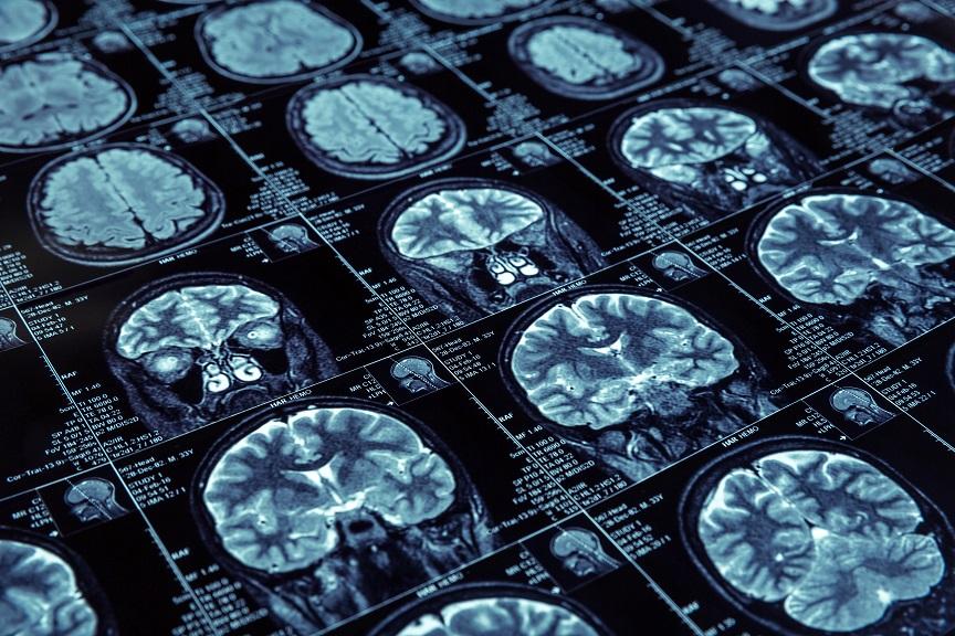 Une plate-forme d'intelligence artificielle s'avère capable de détecter toute une gamme de maladies neurodégénératives dans des échantillons de tissus cérébraux humains, notamment la maladie d'Alzheimer et l'encéphalopathie traumatique chronique.