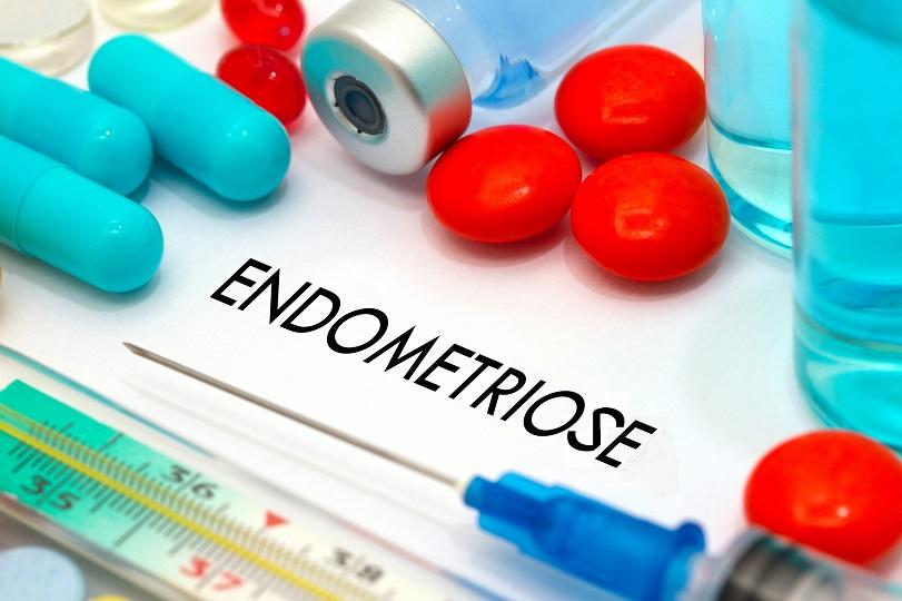 L'endométriose affecte 190 millions de femmes dans le monde. En identifiant une cause génétique de la maladie, ces chercheurs révèlent une nouvelle cible possible de traitement (Visuel Adobe Stock 126345857)