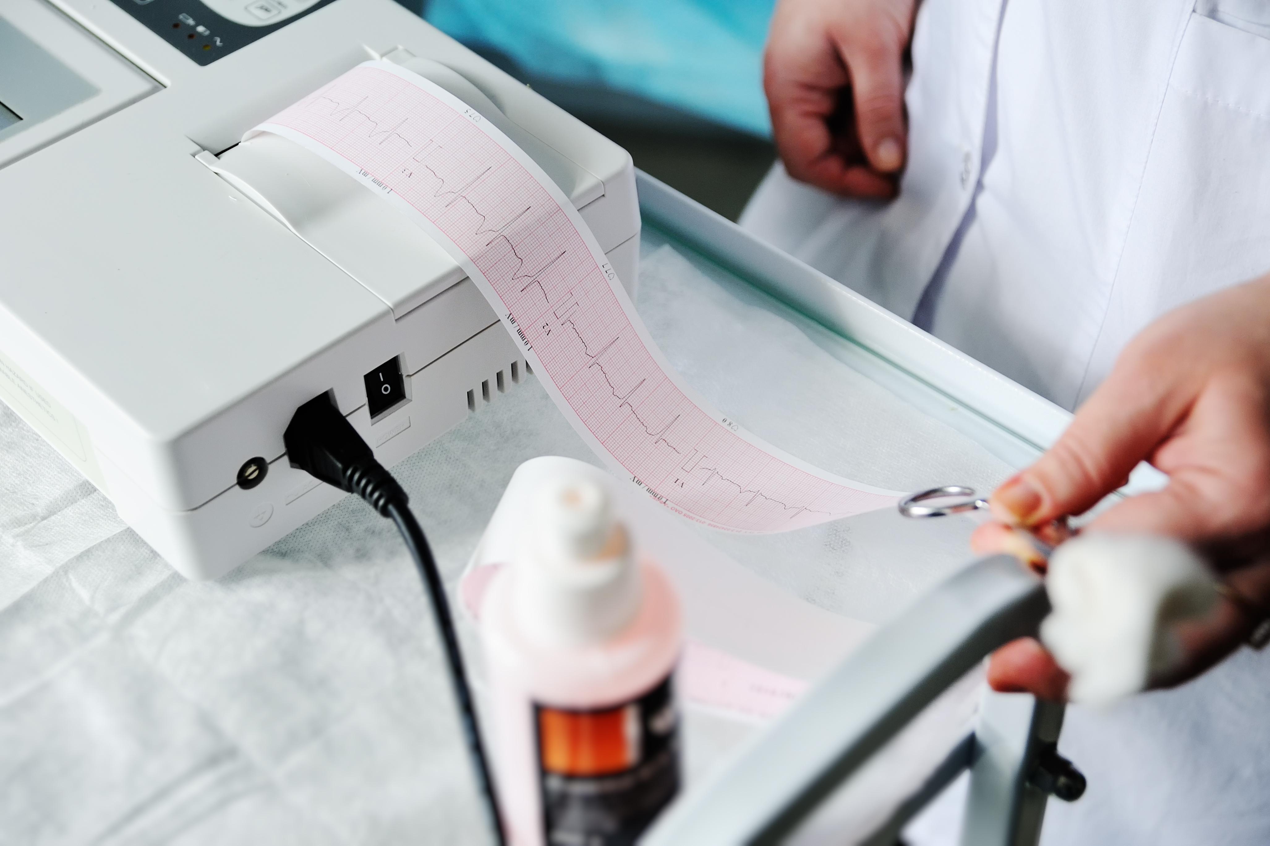 On sait que l'hypertension est un facteur de risque d'accident vasculaire cérébral. C'est bien ce lien entre la santé cardiovasculaire et la santé cérébrovasculaire, qui est confirmé et décrypté (Visuel adobe Stock 139996162)