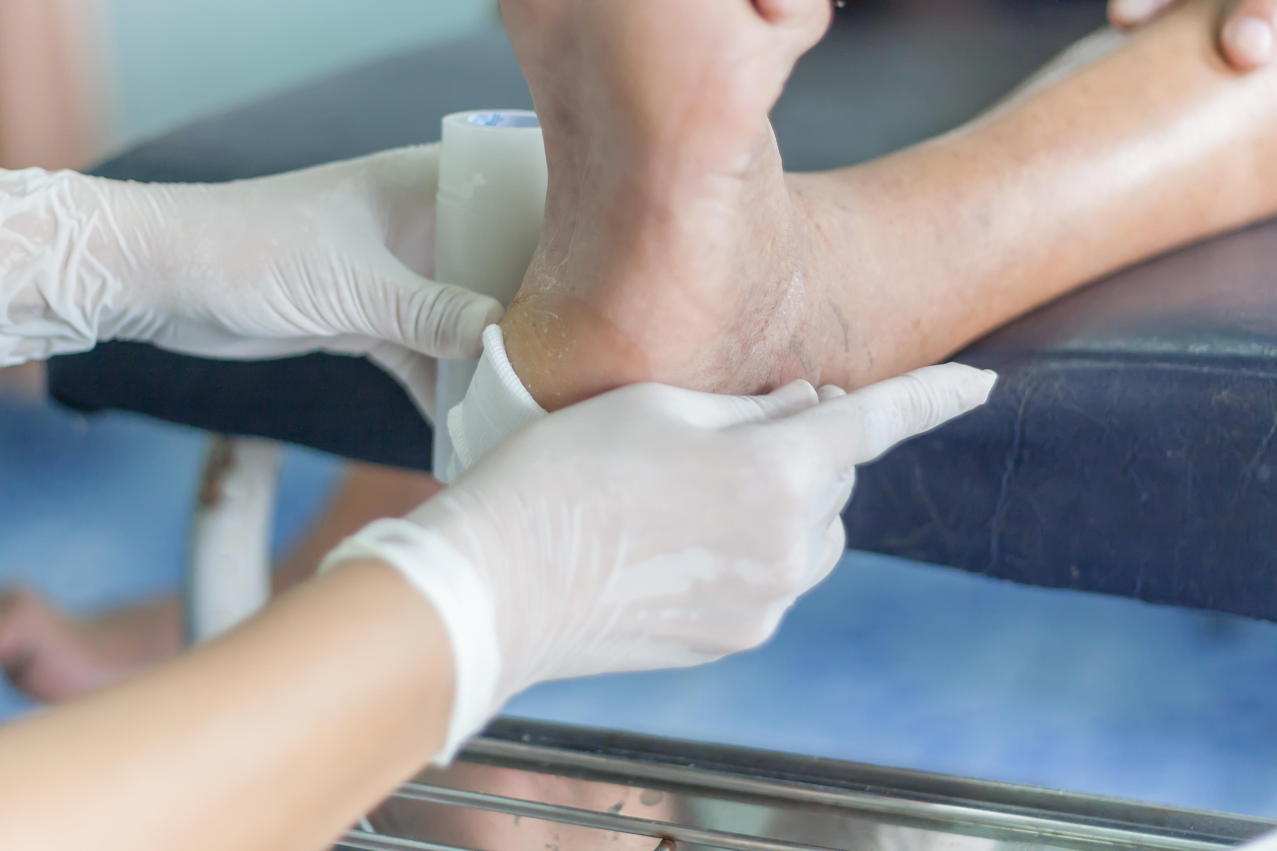 La mise oeuvre de services de soins spécialisés des ulcères du pied diabétique a permis, en Belgique, d'assurer une bonne gestion de ces plaies durant la pandémie (Visuel Adobe Stock 165767373)