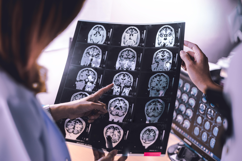 Ces scientifiques et pharmacologues de l'Université de Copenhague et à l'Université d'Aalborg (Danemark) décryptent le principe d'un « cheval de Troie » capable de faire passer un médicament à travers la redoutable barrière hémato-encéphalique qui protège notre cerveau de toute substance étrangère (Visuel adobe Stock 170691498)