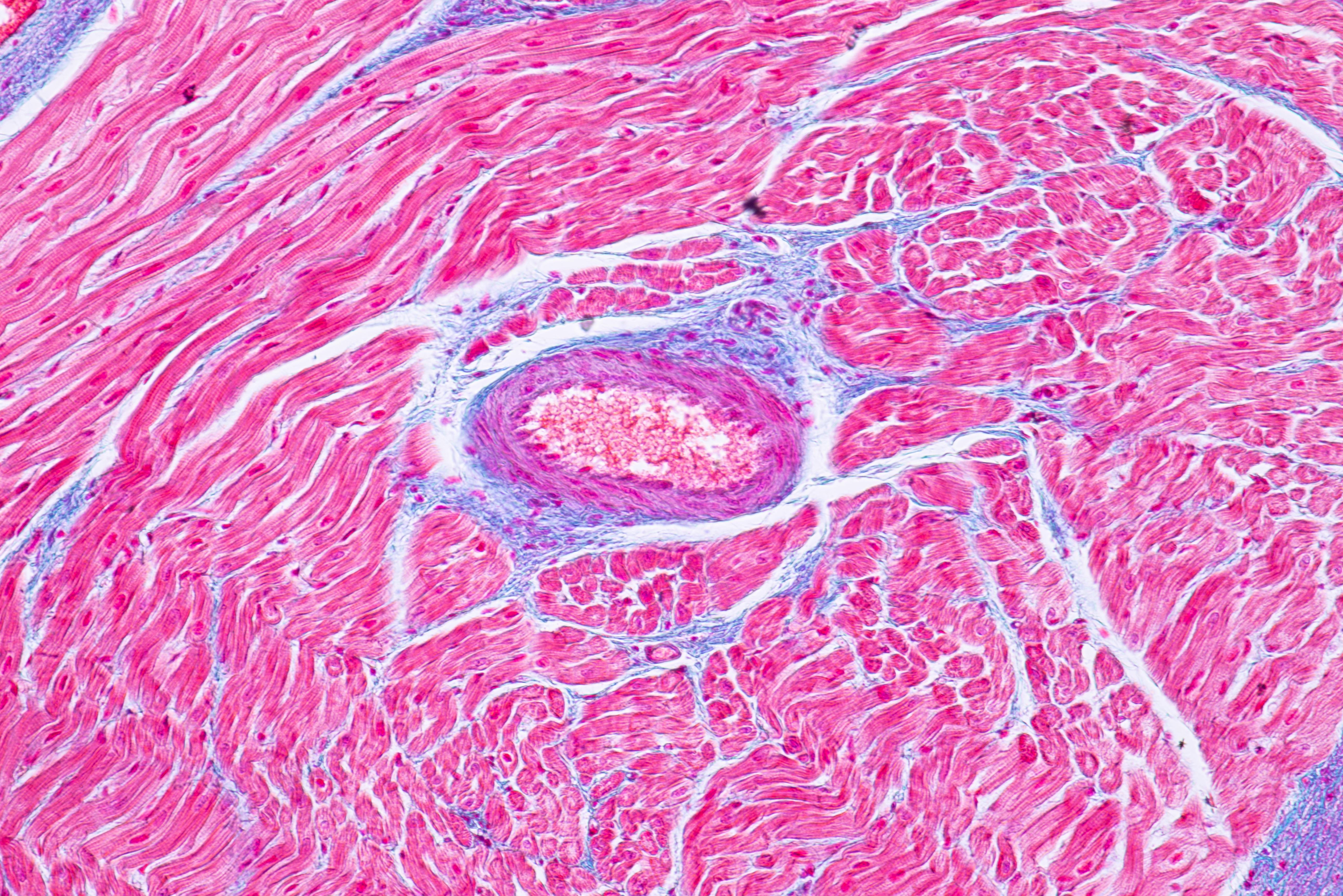 En cause, des effets directs sur les cardiomyocytes, les cellules musculaires du cœur (Visuel Adobe stock 201139568)