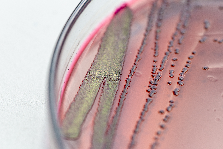 Les régimes occidentaux, riches en graisse et en aliments transformés et pauvres en fibres entraînent un appauvrissement rapide et durable du microbiote intestinal (Visuel Adobe Stock 205547933)