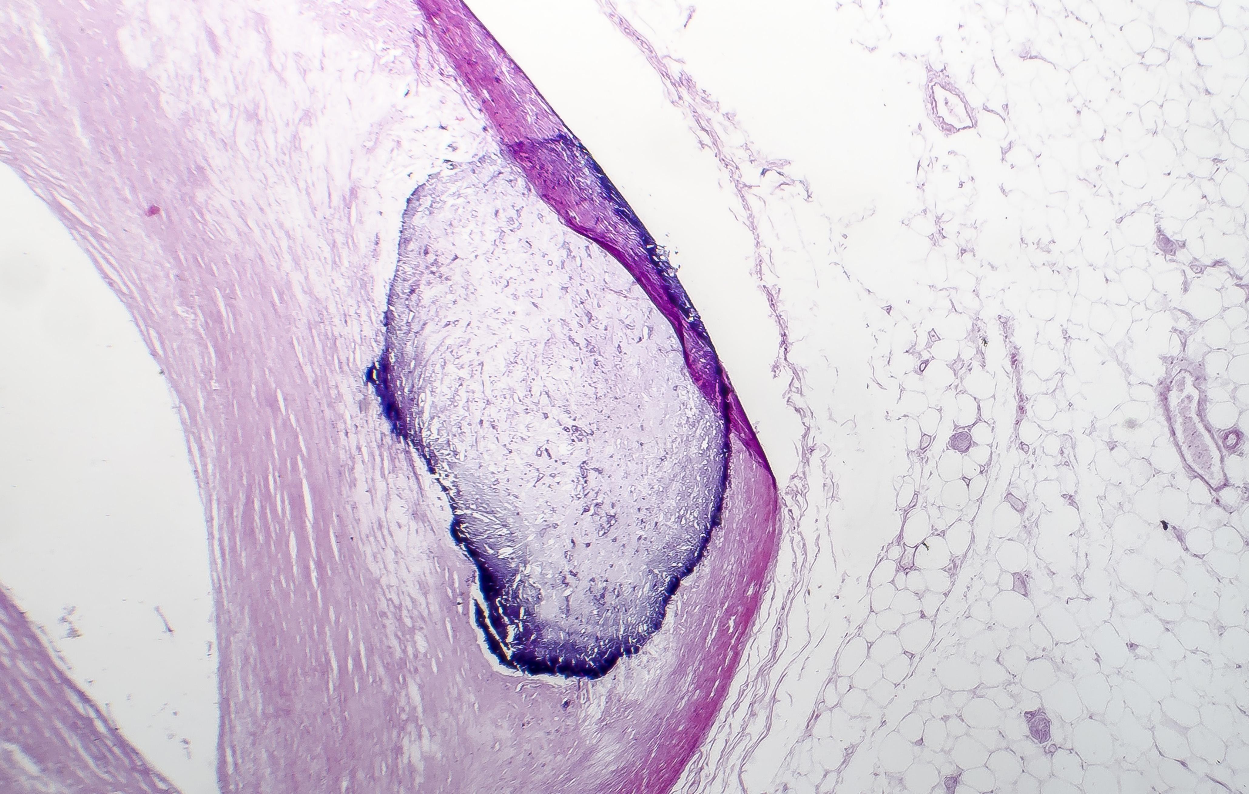 De minuscules particules ressemblant à de l'os sont retrouvées dans la circulation sanguine périphérique
