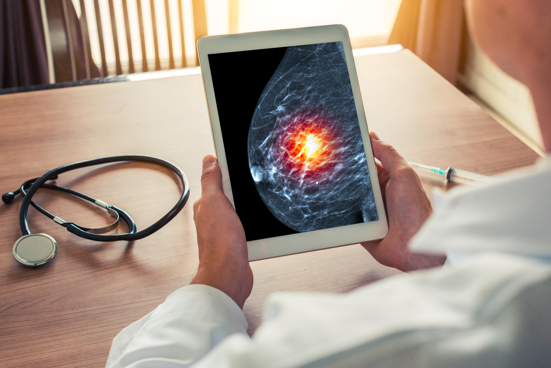 La crise sanitaire COVID-19 a entraîné une augmentation des décès par cancer du sein, sans aucun doute, juste la pointe de l'iceberg (Visuel Adobe Stock 221990325)