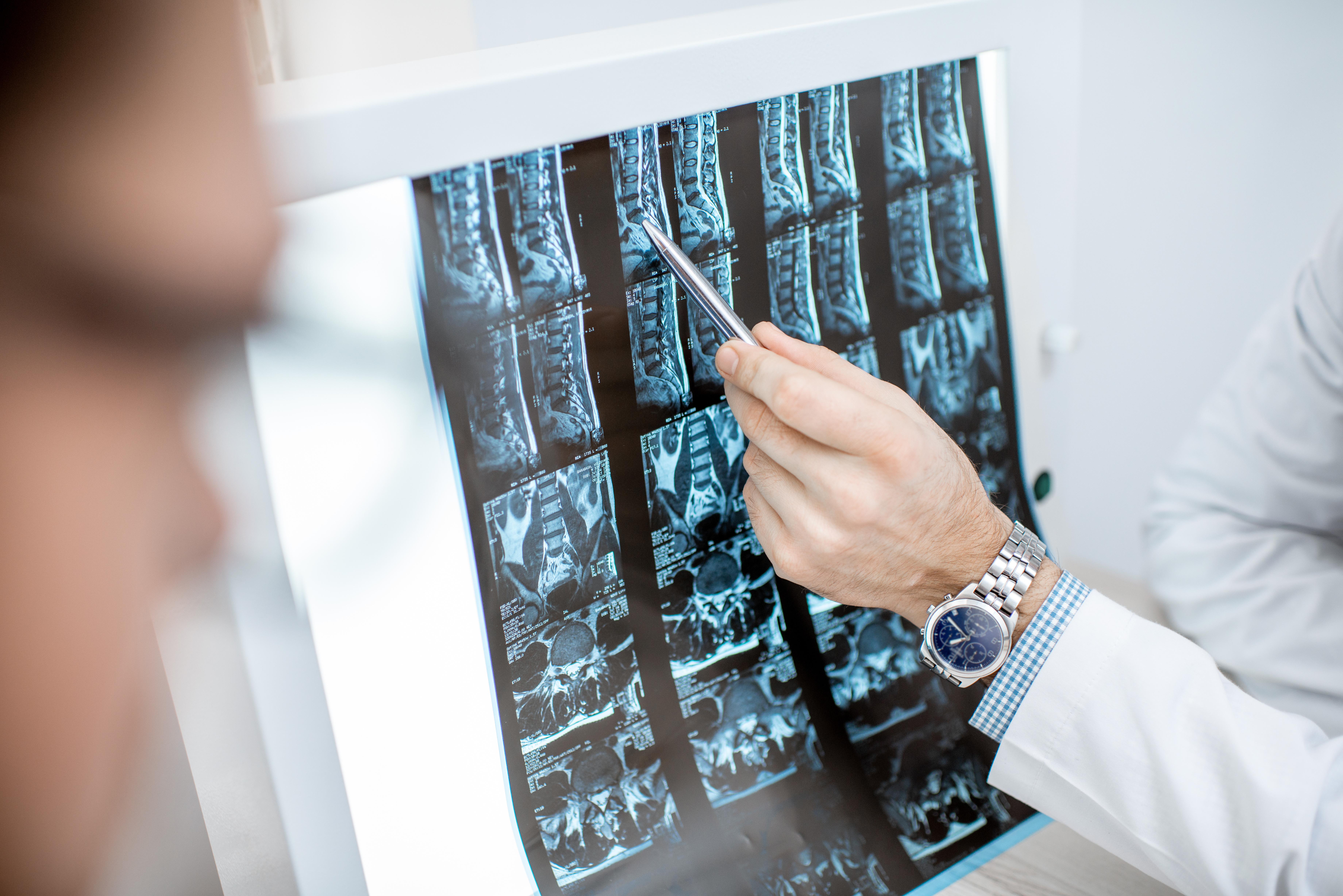 Un nouveau nanobiomatériau appelé hydroxyde double lamellaire (LDH) contribue à inhiber l'environnement inflammatoire entourant les lésions de la moelle épinière, favorisant ainsi la régénération des neurones et la reconstruction du circuit neural dans la colonne vertébrale (Adobe Stock 247792582)