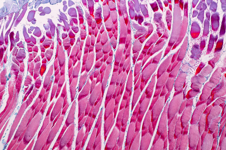 L'étude met en évidence une nouvelle interaction entre un type de cellules immunitaires et un type de cellules souches, une interaction qui stimule la fibrose caractéristique de la dystrophie musculaire (Visuel Adobe Stock 255956721)