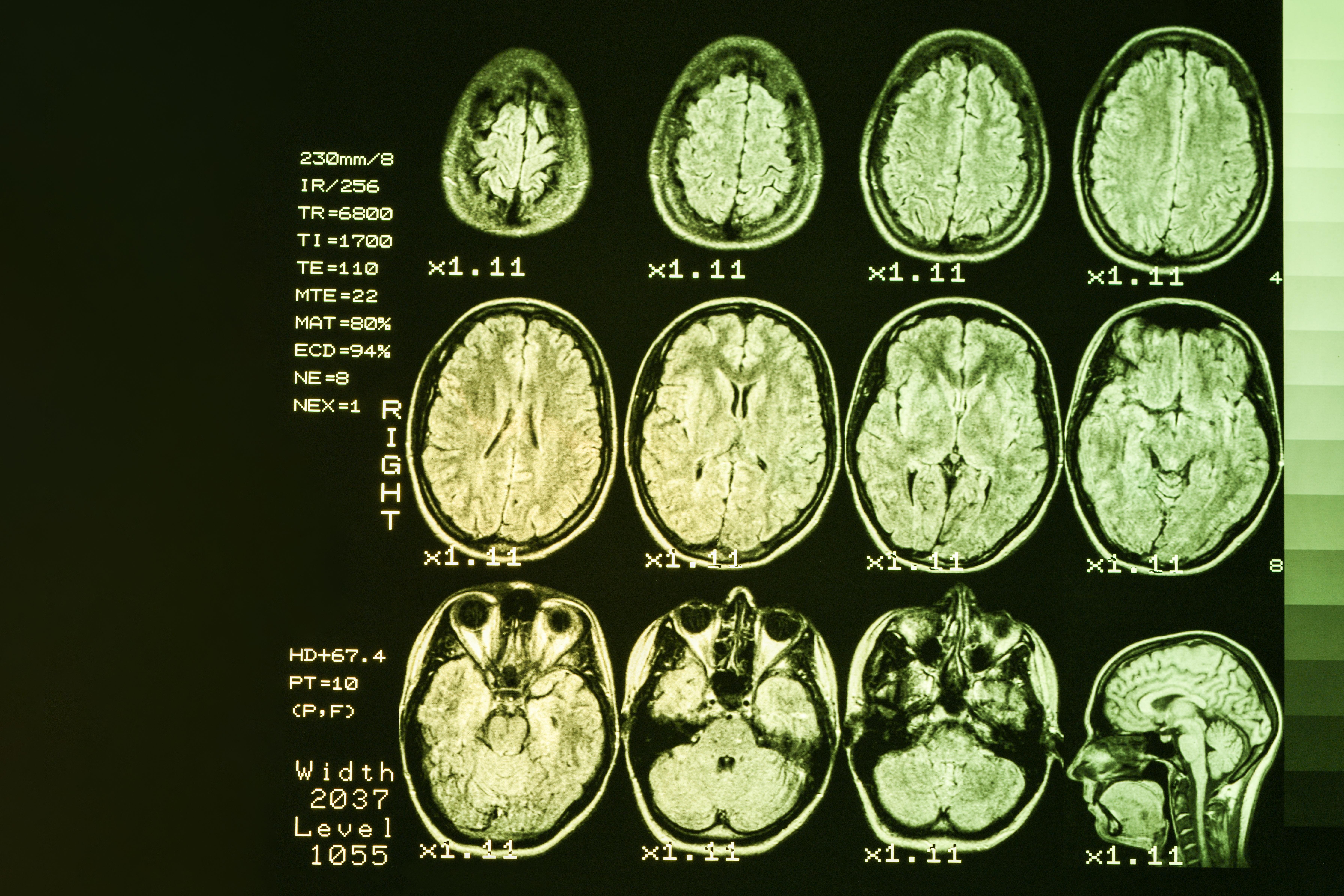 La perturbation de l'autophagie, un mécanisme de dégradation et d'élimination du matériel cellulaire obsolète, pourrait être à l'origine de changements cognitifs précoces dans la maladie de Huntington (Visuel Adobe Stock 266839758)