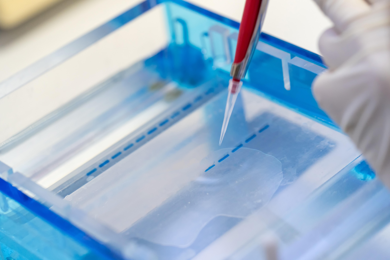 Un gel topique comportant un médicament antihypertenseur pourrait bloquer les voies inflammatoires et accélérer la cicatrisation des plaies cutanées chroniques.