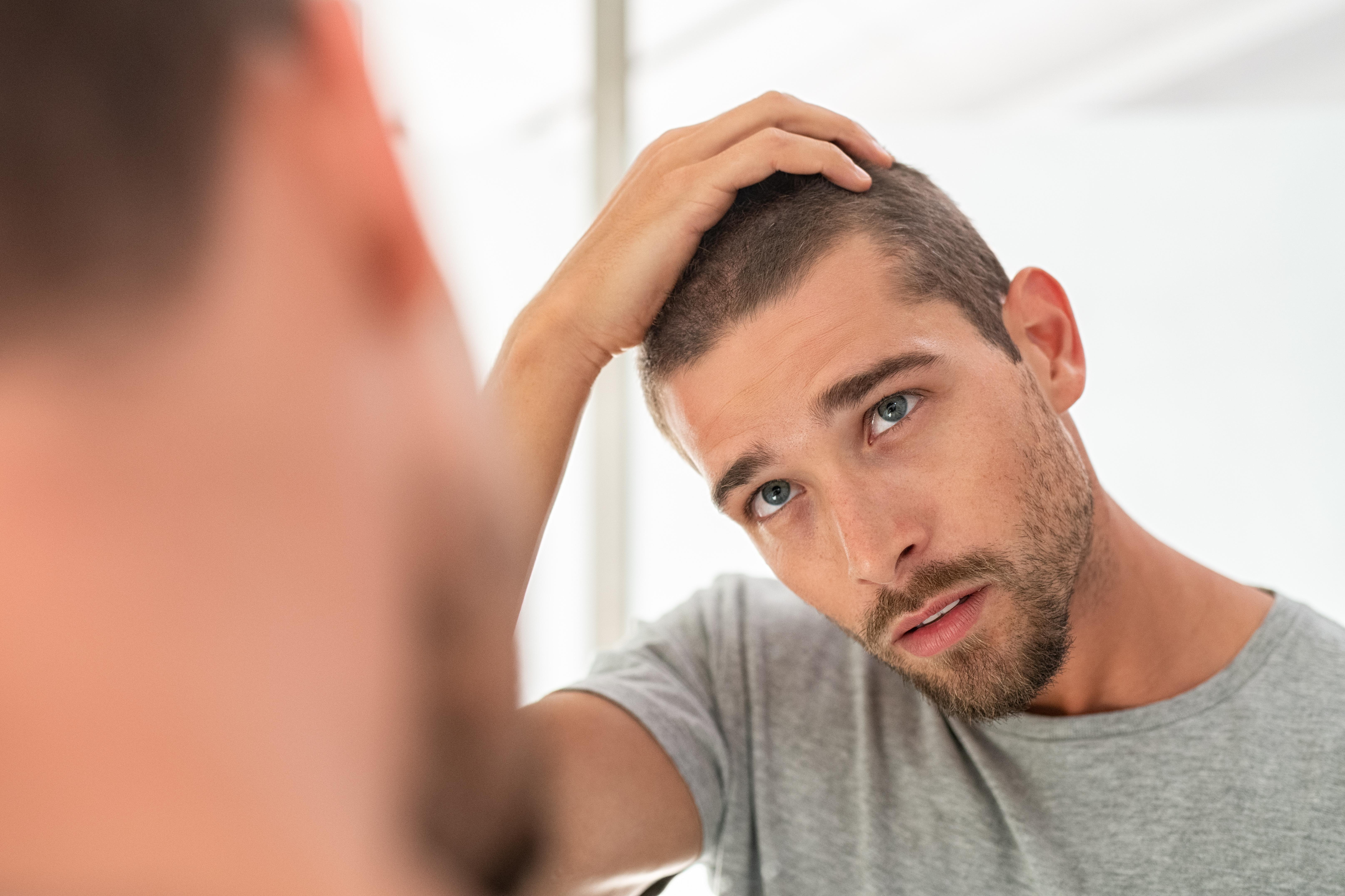 Souhaitez-vous en apprendre plus sur la procédure d'implantation capillaire ? Découvrez ici tout ce qu'il est nécessaire de savoir sur l'implant de cheveux (Visuel AdobeStock_277501530)