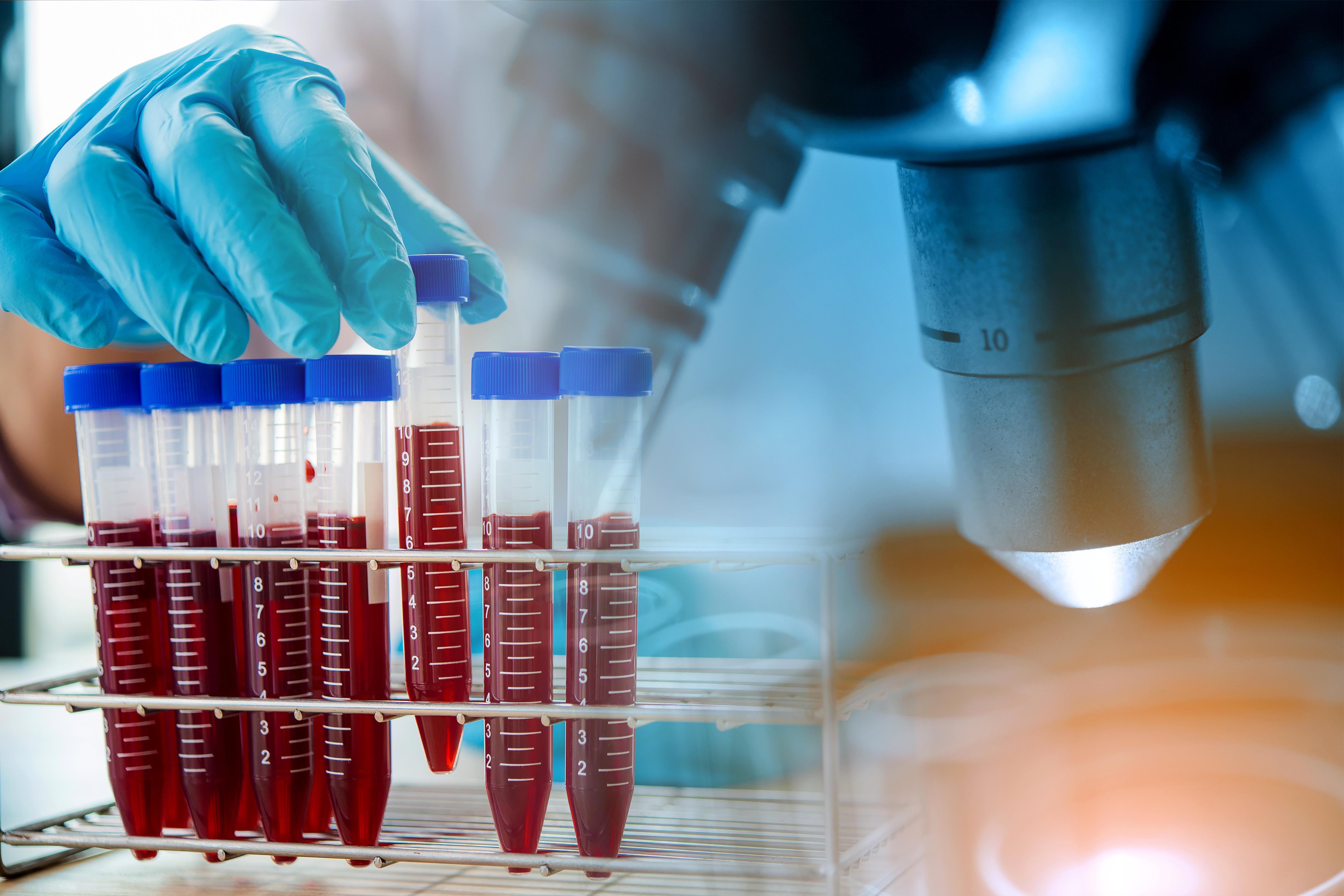Une technique d'intelligence artificielle (IA), l'apprentissage automatique, pour identifier les biomarqueurs sanguins de l'autisme et développer un test sanguin de détection (Visuel Adobe Stock 283646387).