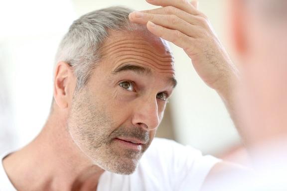 La calvitie touche un homme sur 4 au cours de la vie et un sur 3 après 65 ans