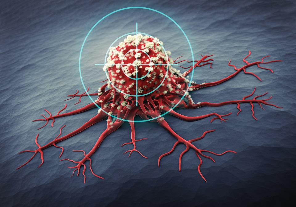 Il est grand besoin d'alternatives à la chimiothérapie pour le traitement de certains cancers et les essais cliniques devront confirmer ces premiers résultats prometteurs du « métallocifène ».