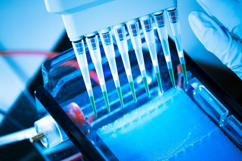 Ce gène qui pourrait diminuer la probabilité de développer une cirrhose pourrait donner lieu à une thérapie génique permettant de prévenir la cirrhose (Visuel Adobe Stock 67738265)