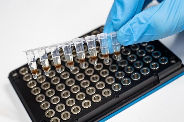 Le diabète de type 2 est un facteur de risque déjà bien documenté de troubles cognitifs et de maladie d'Alzheimer, mais les mécanismes sous-jacents restent mal compris (Visuel UEF / Raija Törrönen)