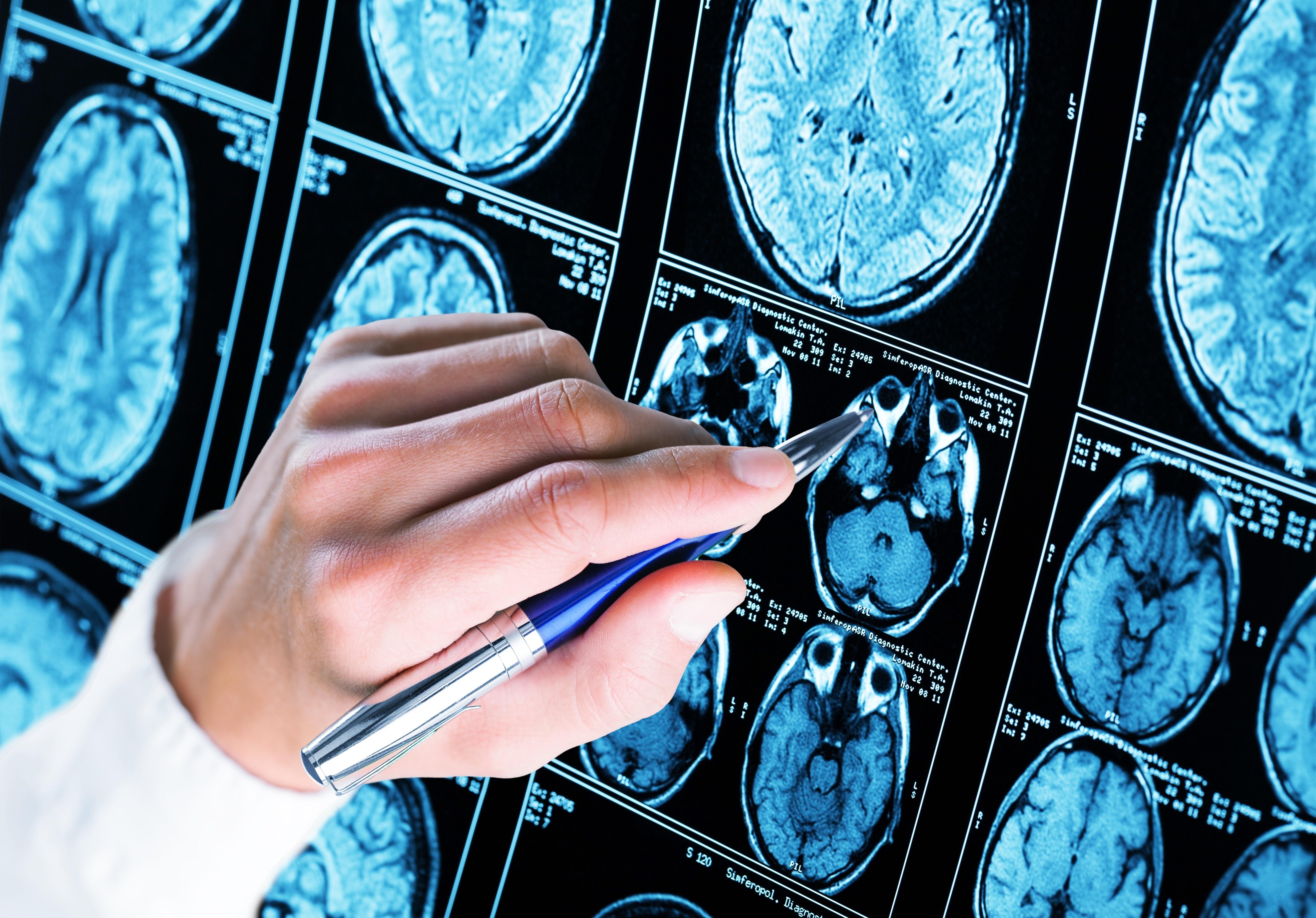 L'accumulation et les agrégats des 2 protéines Tau et β-amyloïde constituent une caractéristique de la maladie d'Alzheimer.