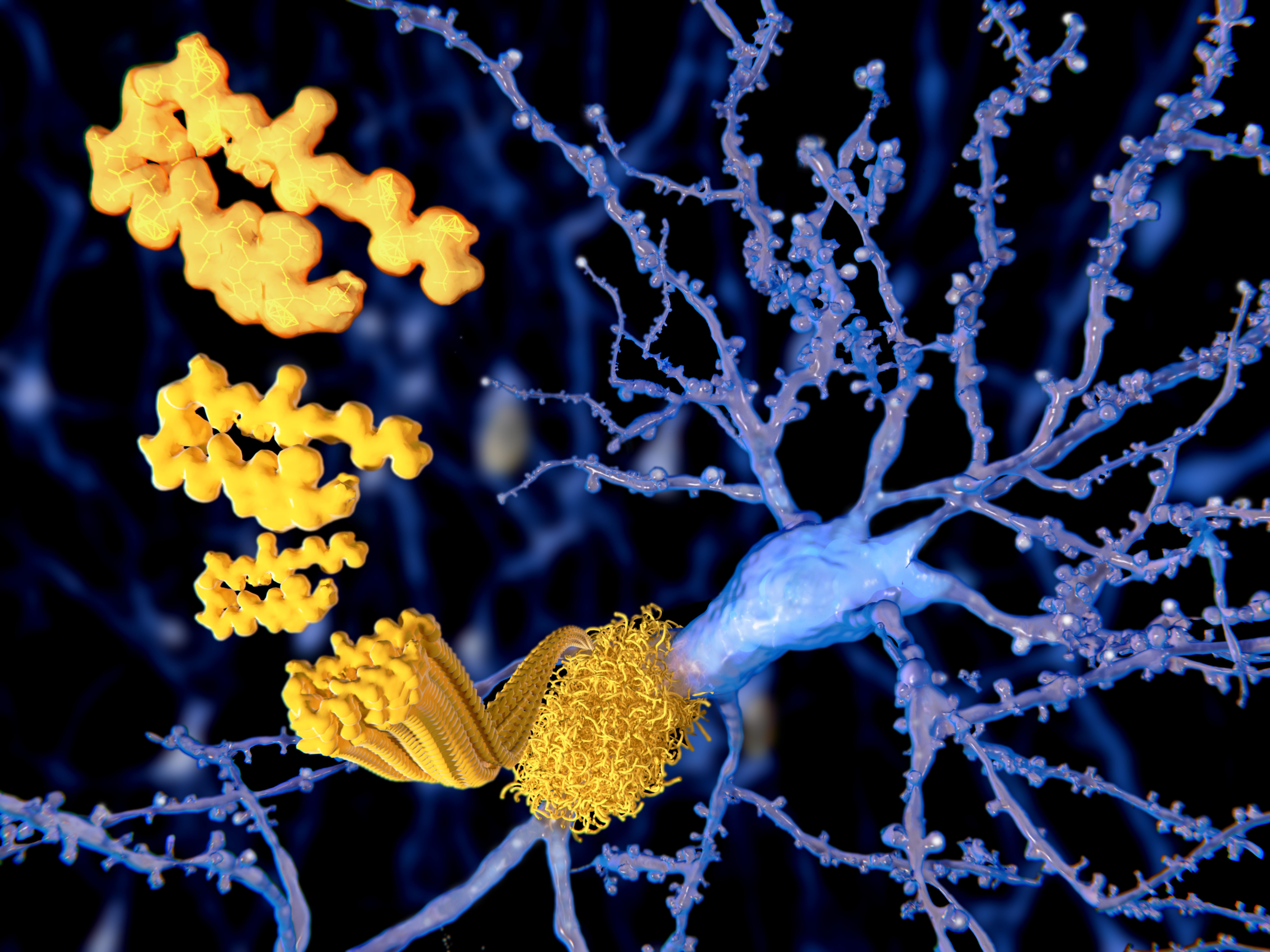 Alzheimer : L'altération du processus de glycosylation de la protéine précurseur entraîne un excès d'amyloïde (Visuel AdobeStock_103208979)