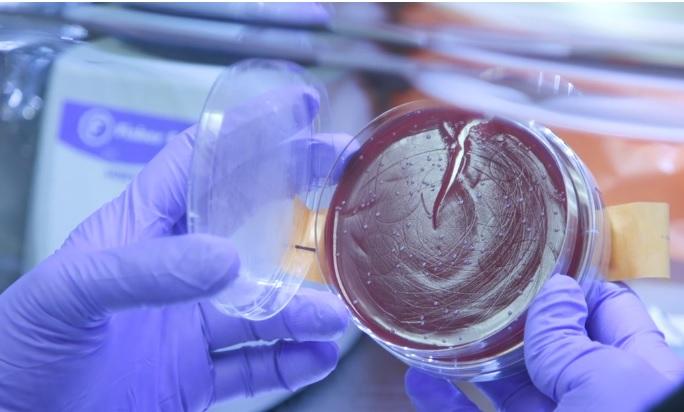 Comme « on parle » d'édition du génome, on parle aujourd'hui « d'édition du microbiote »