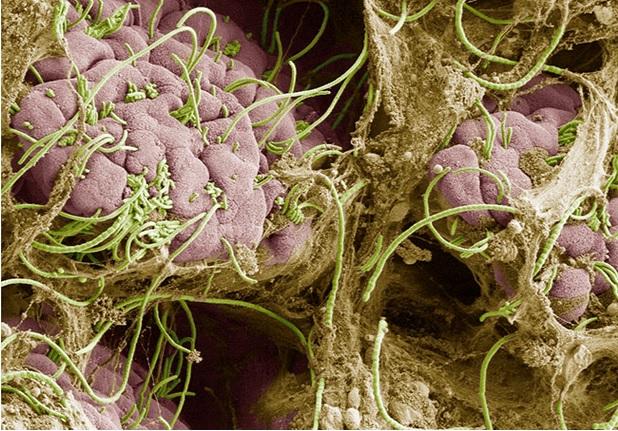 Le stress et le microbiome intestinal -via les bactéries filamenteuses segmentées sur visuel-  jouent un rôle clé dans le déclenchement des crises vaso-occlusives chez les personnes atteintes de drépanocytose (Visuel NYU Grossman School of Medicine)
