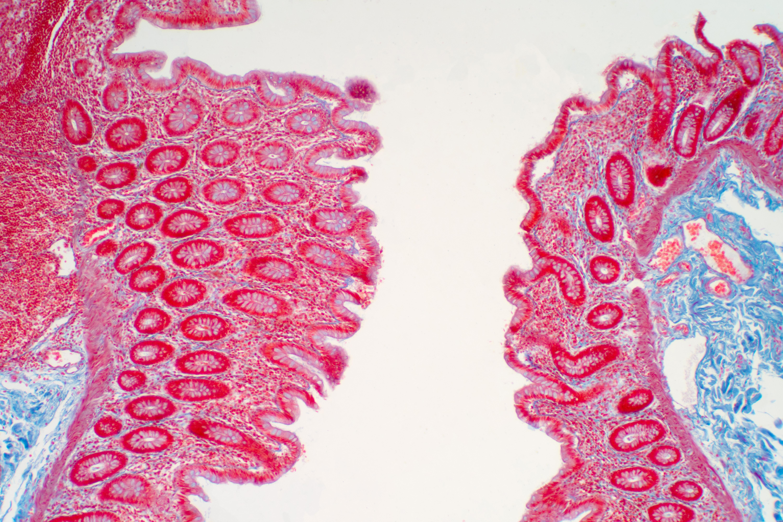 La toxine produite par E. coli modifie l'expression des gènes dans les cellules qui tapissent l'intestin, les induisant à produire une protéine que la bactérie utilise ensuite pour se fixer durablement à la paroi intestinale (Visuel Fotolia)