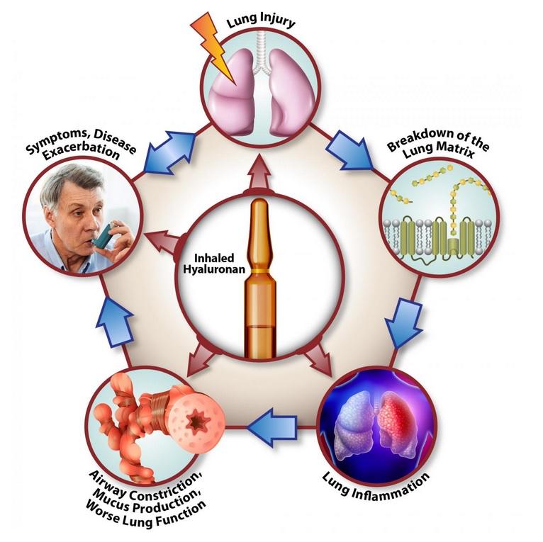 L'inhalation de hyaluronane interfère à presque toutes les étapes du cycle de la maladie pulmonaire (Voir visuel), ce qui en fait un traitement puissant pour les maladies pulmonaires chroniques (Visuel Stavros Garantziotis, M.D.).