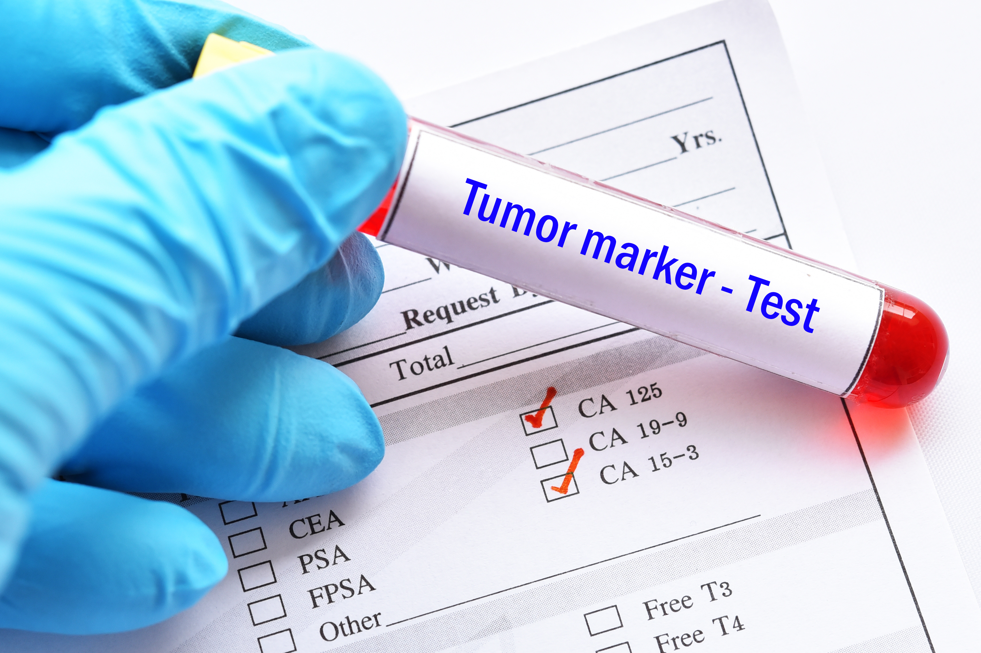 Comment le nombre de cellules « agressives » dans un échantillon de tumeur définit la vitesse de progression et de propagation de la maladie.