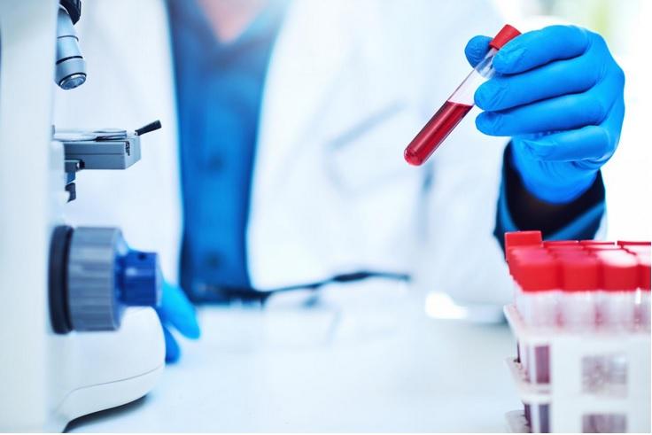 Ces travaux décrivent le développement d'un test sanguin, composé de biomarqueurs ARN, qui permet d'évaluer le degré de sévérité de la dépression, le risque d'aggravation, ainsi que le risque de trouble bipolaire futur (Visuel Fotolia)