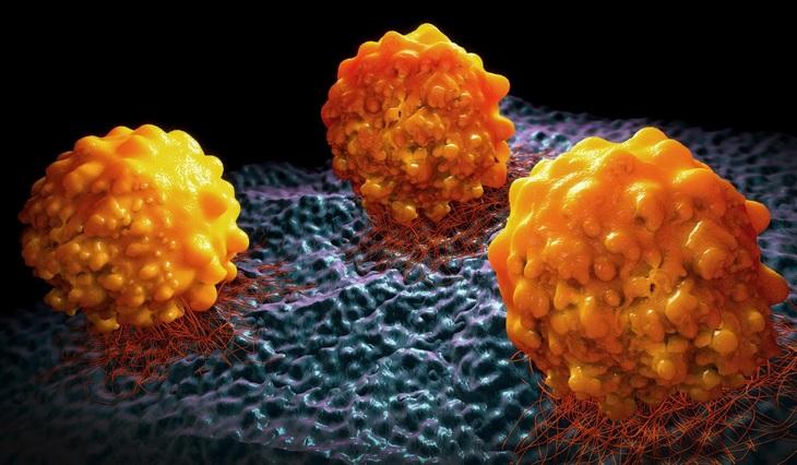 Prévenir les métastases en empêchant les cellules cancéreuses de produire de la graisse