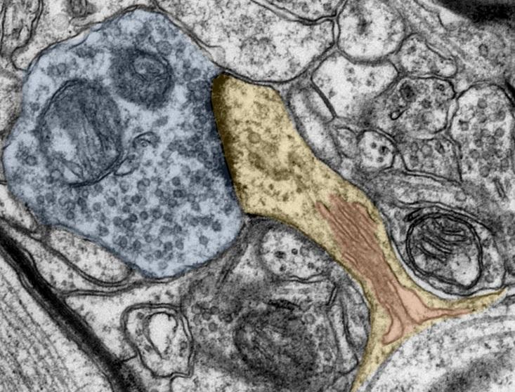 Image de microscopie électronique de cellules cérébrales avec épines dendritiques (jaune), appareil vertébral (rouge) et extrêmités des synapses (bleu) (Visuel Andreas Vlachos)