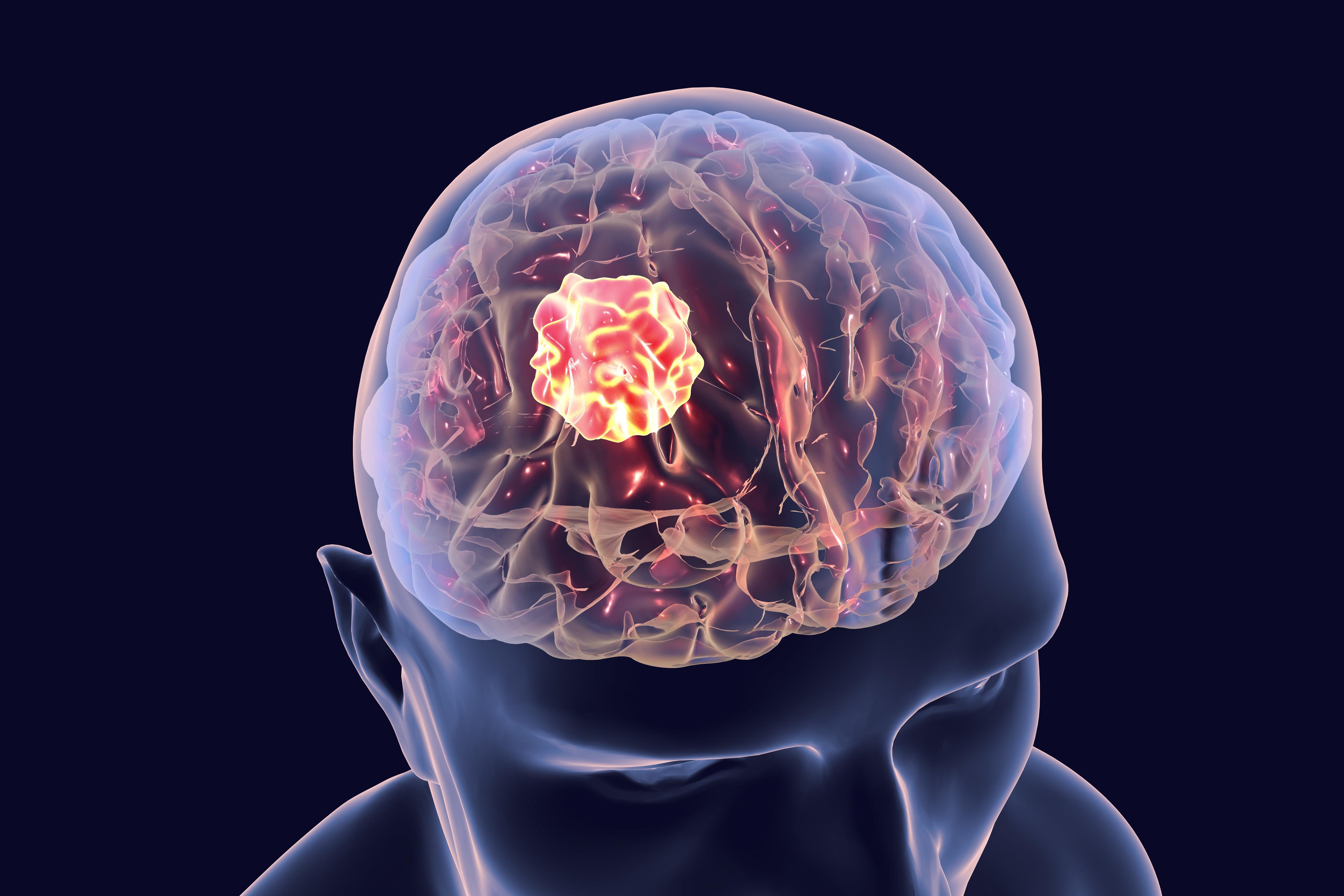 Comment les douleurs de la vie quotidienne, comme les maux de tête et les maux de dos, influencent-elles notre capacité à penser ?  (Visuel Fotolia)