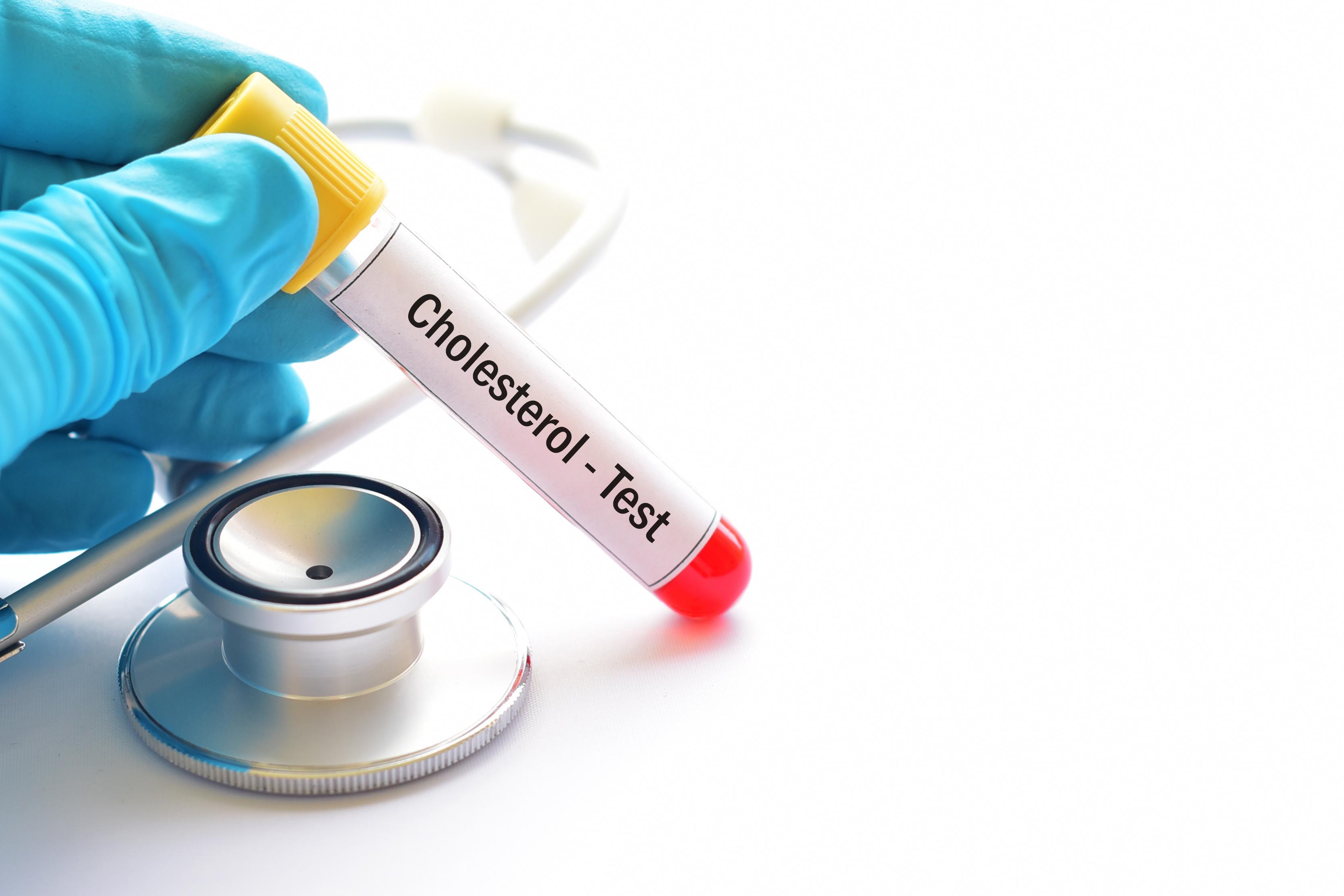 Il est une autre voie, que celle de la santé cérébrovasculaire,  par laquelle le cholestérol influence aussi le risque de démence (Visuel Adobe Stock 176284606)