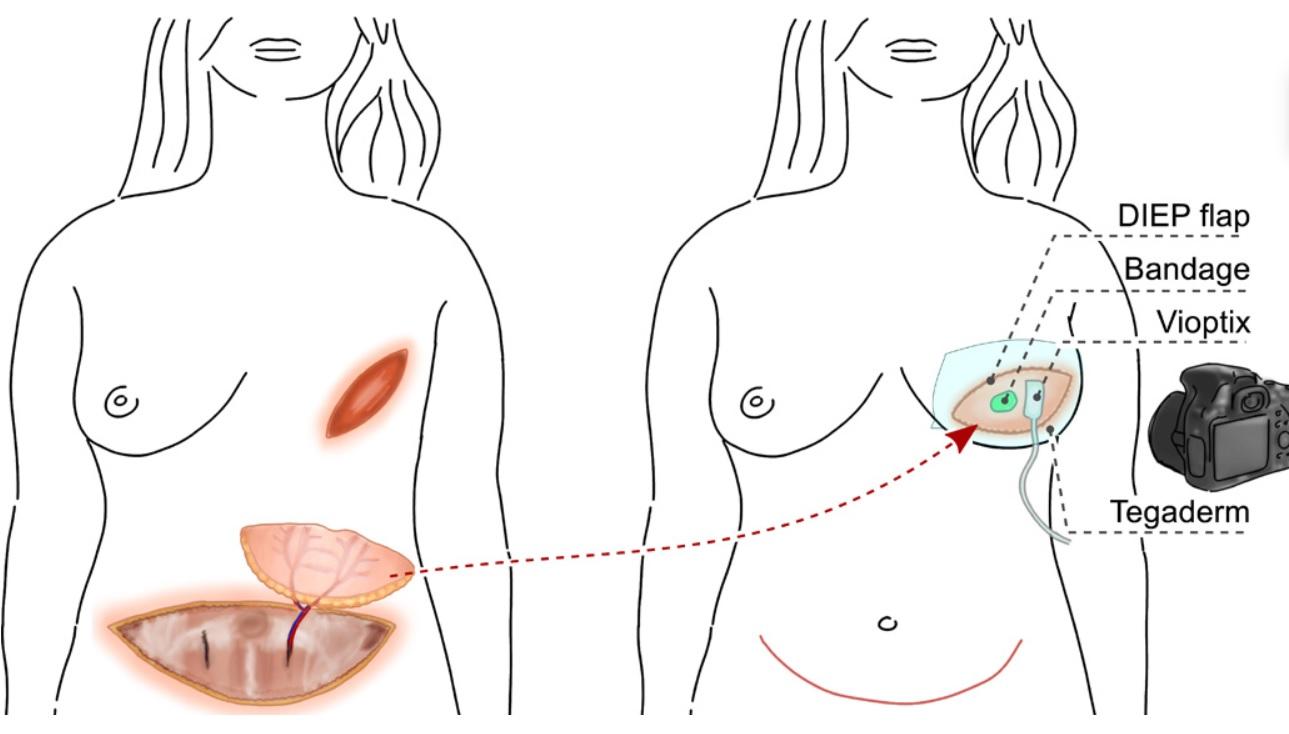 Ce dispositif va permettre d'optimiser la surveillance de la cicatrisation des plaies, des greffes de tissus pour les traumatismes, des greffes de peau pour les brûlures, des membres affectés par une maladie artérielle périphérique et l'ischémie chronique (Visuel Science Advances)