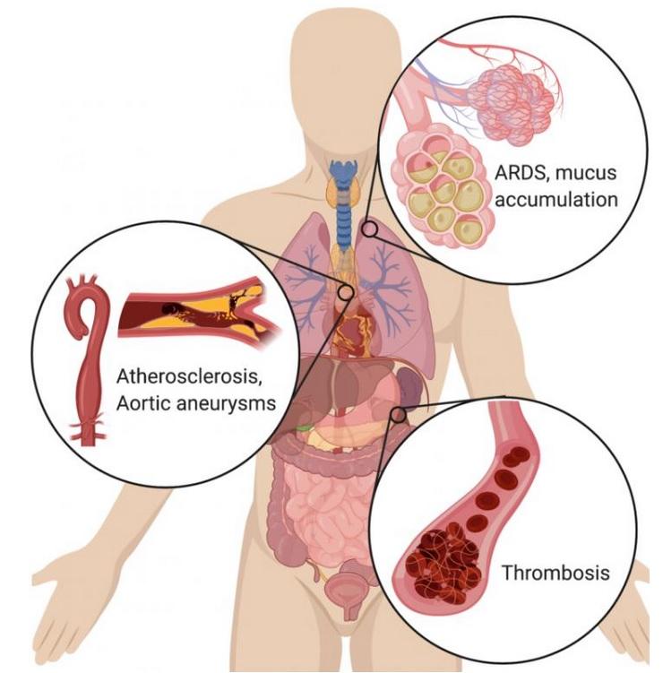 Des cellules immunitaires hyperactives, des neutrophiles, semblent, avec leurs « pièges extracellulaires » causer le décès dans la maladie COVID-19