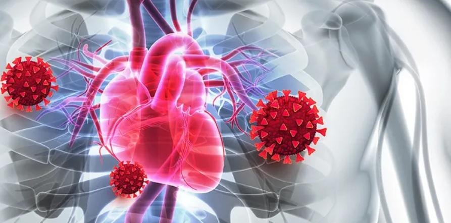Chez les personnes déjà à risque cardiaque élevé, soit en raison d'un taux de cholestérol génétique élevé, soit d'une maladie cardiaque préexistante ou d'une athérosclérose, la maladie COVID-19 a augmenté de manière significative l'incidence de la crise cardiaque (Visuel FH Foundation)