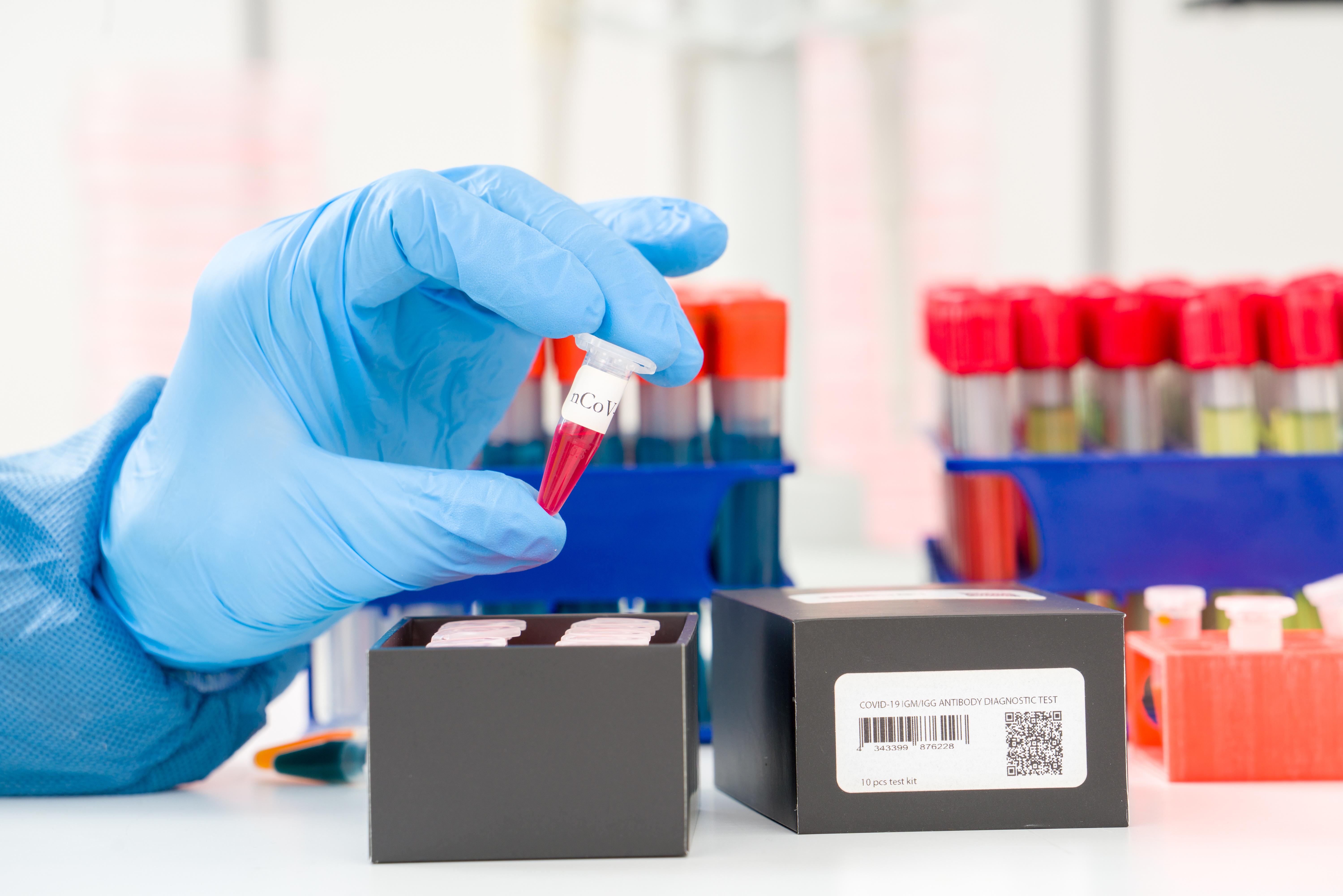 La clairance virale n'intervient que bien après la disparition des symptômes, chez un grand nombre de patients