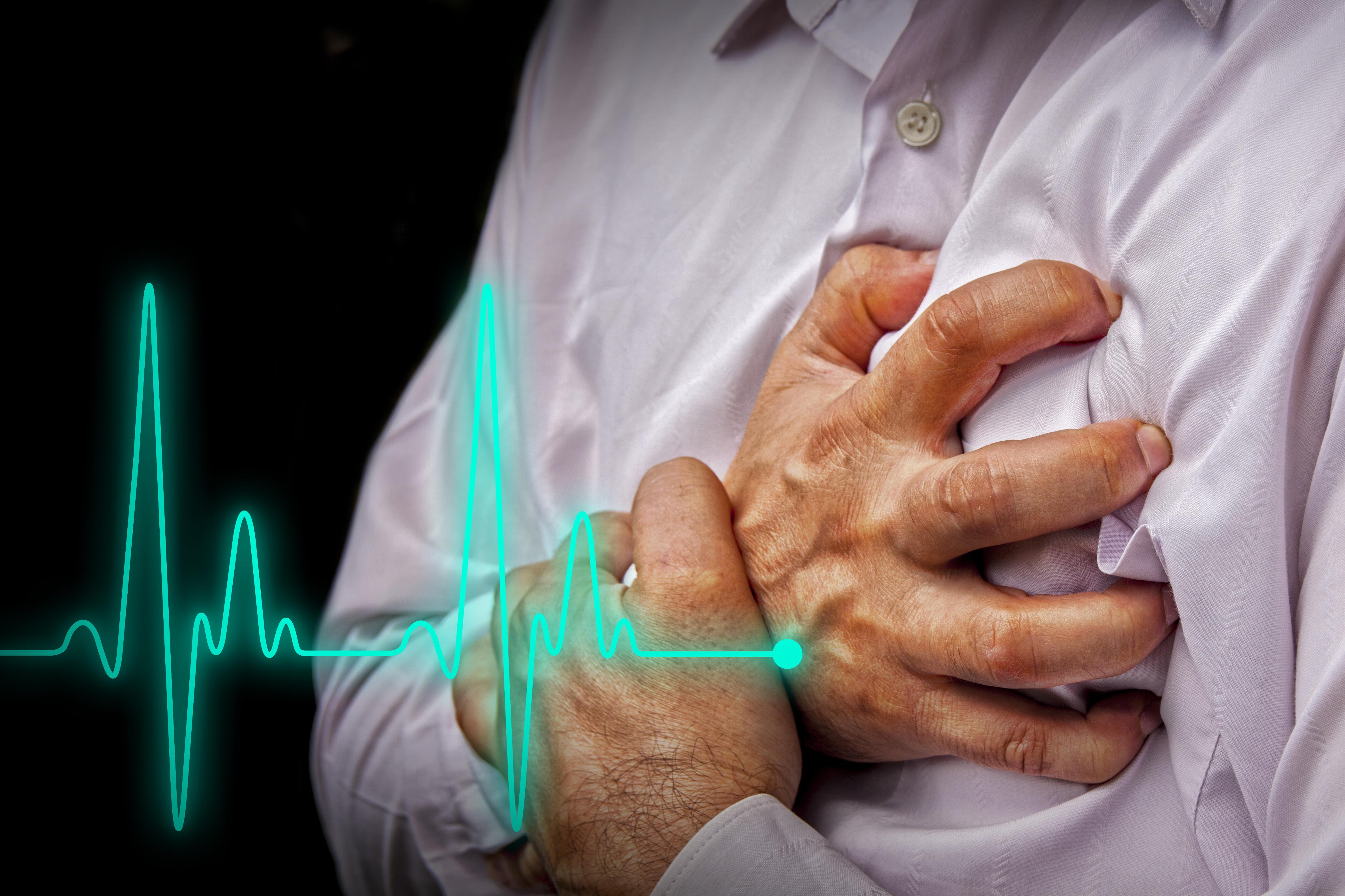 Une activité cérébrale accrue, causée par des événements stressants peut entraîner le syndrome de Takotsubo (TTS pour Takotsubo syndrome ) une forme de cardiopathie rare et mortelle (Visuel Adobe Stock 69364543)
