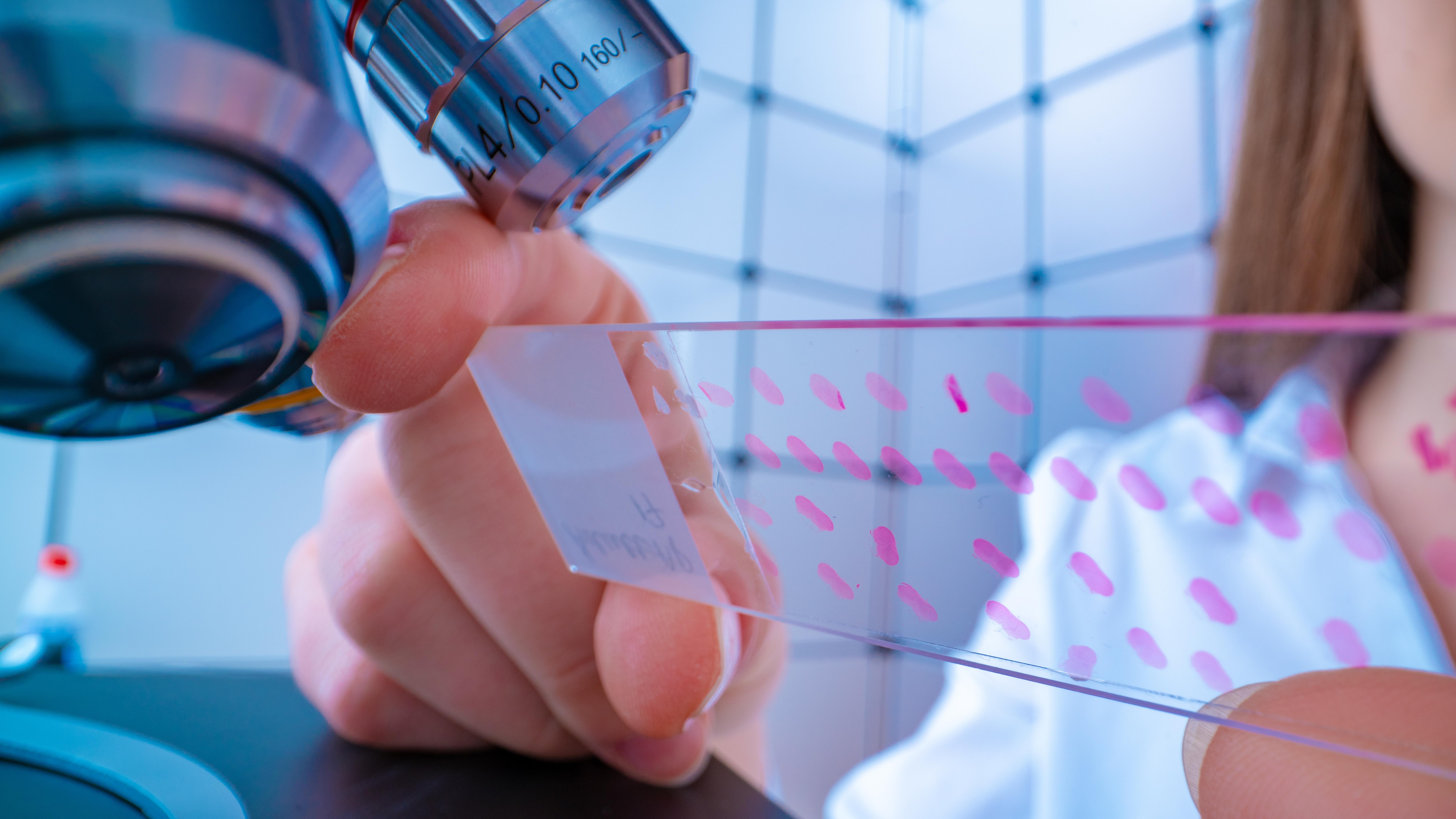 Ce test cutané pourrait révolutionner ce diagnostic actuellement réalisé par examen du liquide céphalorachidien.