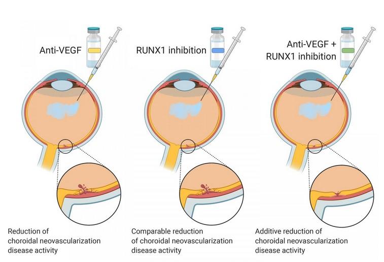 Le facteur de transcription 1 lié à Runt (RUNX1) a déjà été lié à la néovascularisation rétinienne et au développement de vaisseaux sanguins anormaux responsables de la perte de vision (Visuel The American Journal of Pathology)