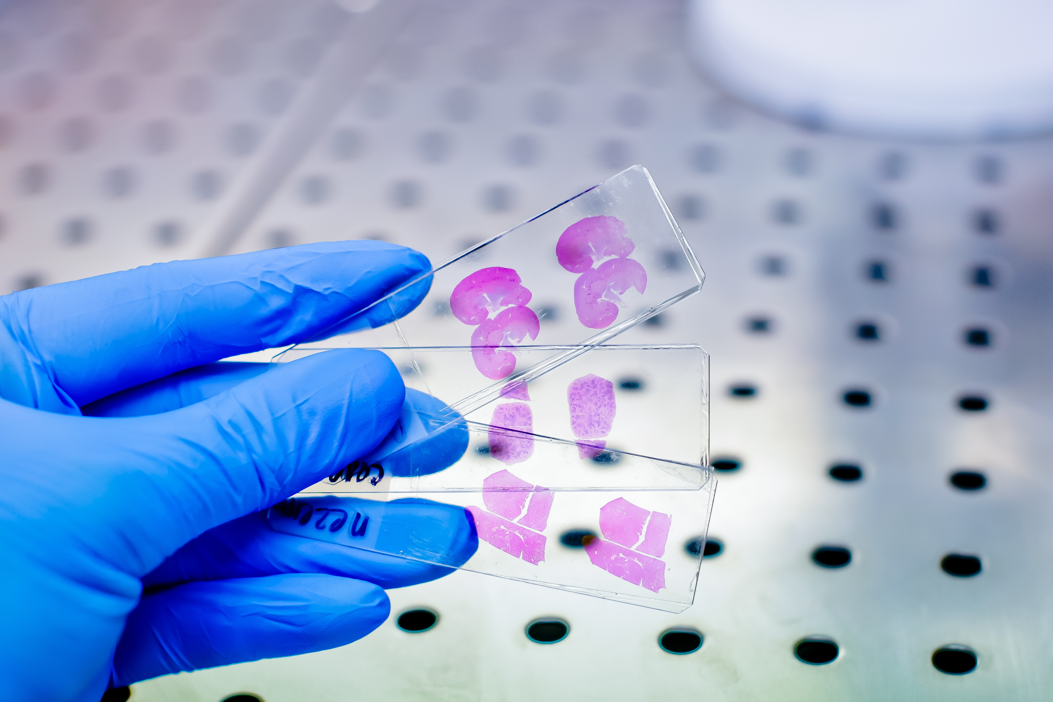 Inhiber la voie de régulation des acides biliaires pour protéger le foie ? (Visuel AdobeStock_197669370)