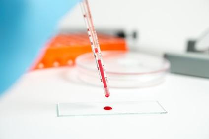 La fibromyalgie était une caractéristique commune chez les patients présentant une anémie ferriprive et une thalassémie mineure