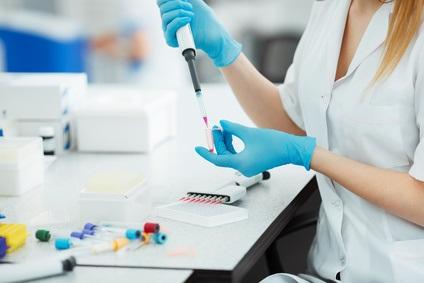 C'est une dernière génération de test sanguin, basé sur le principe de « biopsie liquide », c'est-à-dire qui analyse l'ADN circulant dans le sang et qui révèle ici à l'ASCO un potentiel de détection précoce du cancer du poumon.