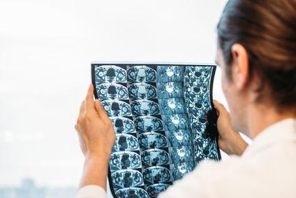La plupart des adultes d'âge moyen et plus âgés retrouvent la capacité de vivre de manière autonome moins d'un an après une chirurgie pour fracture de la hanche.