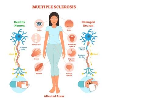 Près des 2 tiers des patients atteints de SEP signalent de la fatigue et la moitié de la douleur au cours de la première année suivant le diagnostic (Visuel Fotolia 192872586).