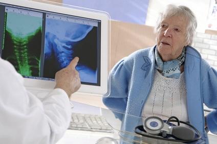 Les probiotiques pourraient bien contribuer à renforcer les os, en particulier des personnes âgées