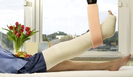Ce bandage « osseux » est conçu pour capturer et piéger une molécule pro-cicatrisante, l'adénosine, sur le site de la fracture