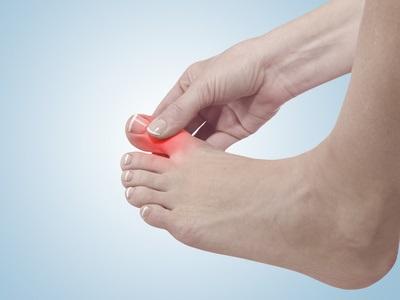 On estime que 2% environ des adultes sont atteints de goutte