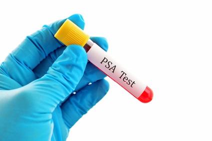 Le test PSA ne devrait pas être systématique, pourquoi ? (Visuel Fotolia_98385407_XS)