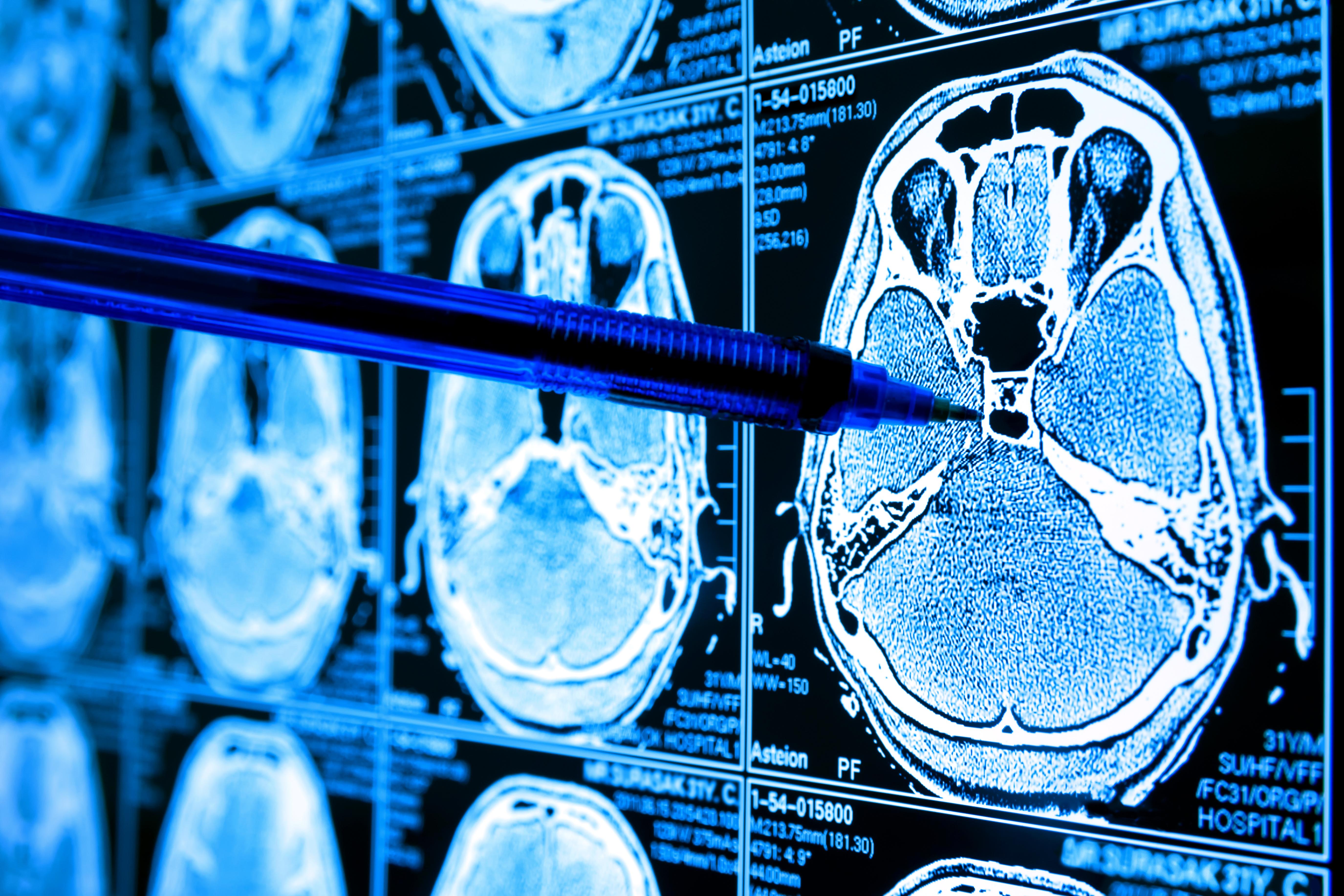 Les tumeurs cérébrales peuvent être ensemencées donc traitées à partir d'un site distant (Adobe Stock 221723157)